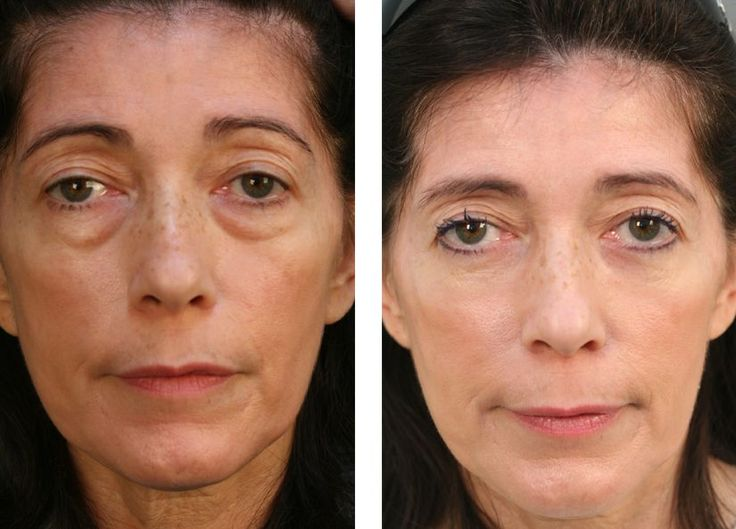 Home Remedy Methods With Face Exercises To Remove And ...
