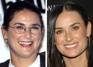 24 Best dental makeovers images | Celebs, Celebrities, Smile