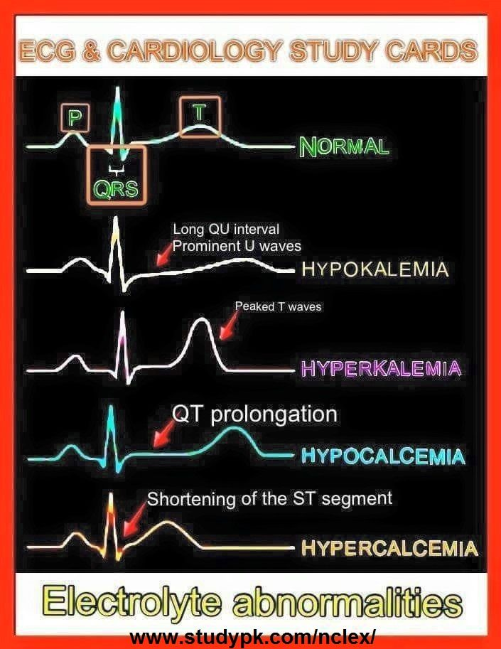 Nursing ECG & Cardiology Study Cards: Electrolyte Abnormalities