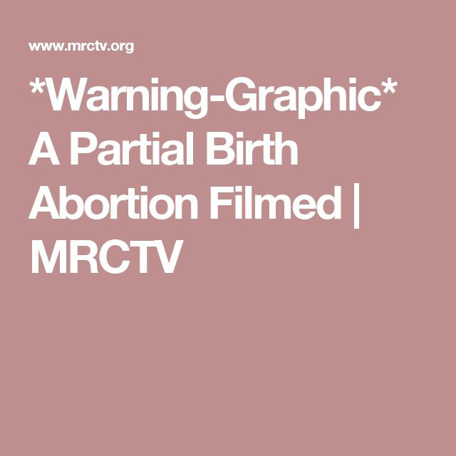 is partial birth abortion moral There is a moral quality to partial-birth abortion that is self-evident this is why congresswoman pat schroeder didn't want line drawings displayed in congress in the early debates.