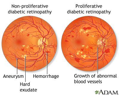 Diabetic retinopathy.