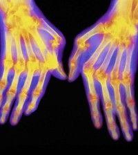 Benefits Of Massage Therapy For Rheumatoid Arthritis