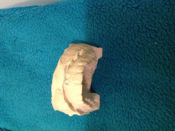 Alginaat afdruk van een bovenkaak