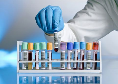 15 Lab Tests for PCOS | PCOS Support Blog