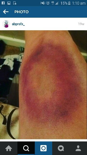 Bruise using facepaints and normal eyeshadow- so realistic!