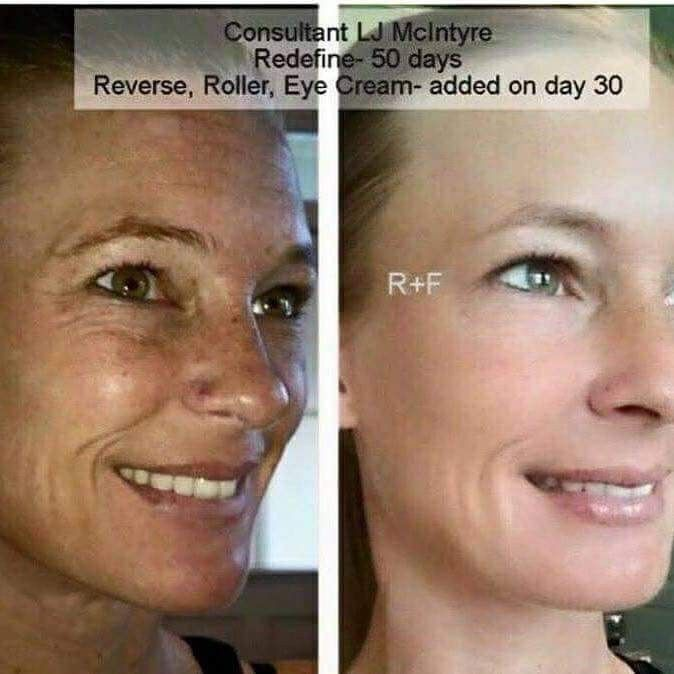 Rodan and Fields Reverse Regimen, AMP MD Roller, Multifunction Eye Cream