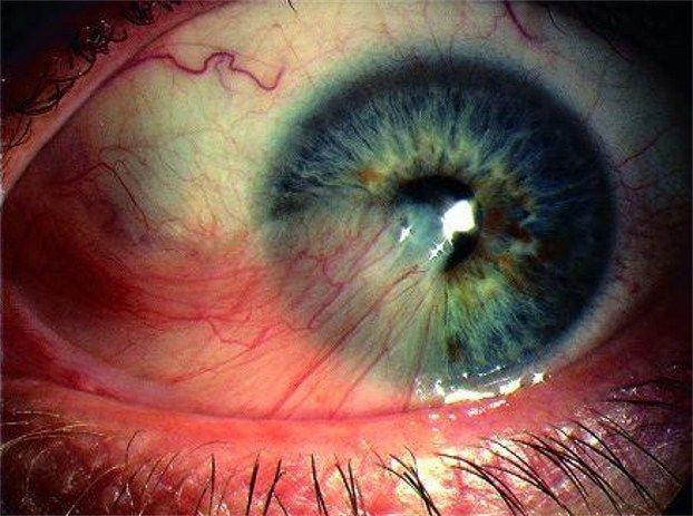 A pterygium is a non-cancerous growth of the conjunctiva, which lays over the sclera. In most cases, a pterygium grows from the inner corner of the eye. A pterygium is usually painless, though it can cause irritation to the eye at any stage. The tissue is often triangular, pink and fleshy. Fine blood vessels may be visible.