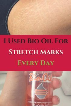I Used Bio Oil For Stretch Marks Every Day : Here Is What ...