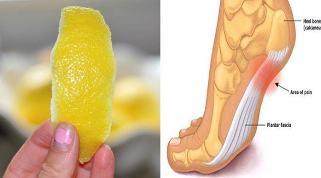 Ten artykuł ukazuje w jaki sposób skórka z cytryny może skutecznie leczyć różne problemy zdrowotne, w tym przewlekłe bóle stawów.