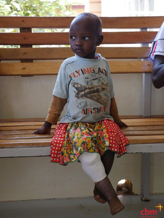 2015 News - cbm Canada forms Nia Technologies to provide orthotic solutions for children in developing countries through 3D Printed Prosthetics.   Roseline (pictured) is wearing @niatech's 3D PrintAbility printed prosthetic at our partner hospital in Uganda.
