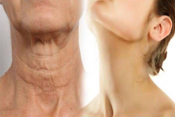 5 egyszerű módja a nyak megfiatalításának. Nem titok többé! - Tudasfaja.com