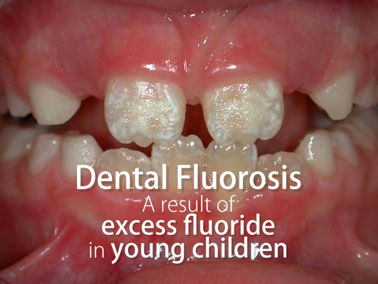 Too much fluoride in young children isn't a good thing — it can lead to tooth discoloration called dental fluorosis.