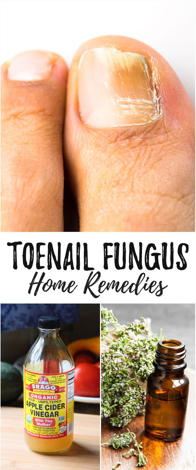 Home Remedies for Toenail Fungus That Really Work - Toenail fungus can be…