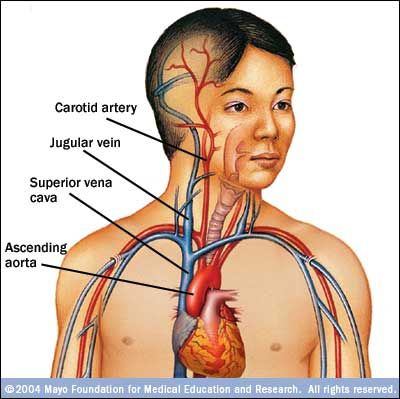 25+ best ideas about superior vena cava syndrome on pinterest, Human Body