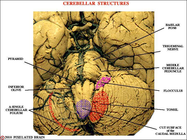 Cerebellar structures flocculus, tonsil, caudal medulla ...