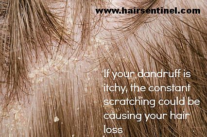 Dandruff can cause an itchy scalp, possibly resulting in hair loss