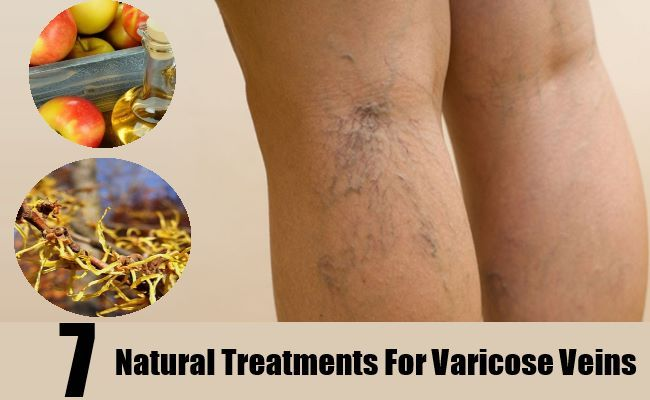 7 Natural Treatments For Varicose Veins