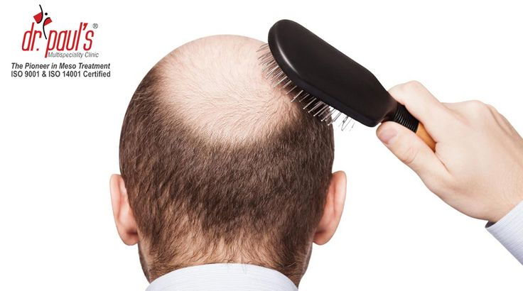 Top 5 Amazing Herbs that Promotes #Hair Growth and Prevents Baldness http://www.drpaulsonline.com