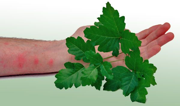How to treat and avoid poison ivy, poison oak, and poison sumac.