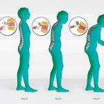 Συχνές ερωτήσεις για την οστεοπόρωση. Διαβάστε περισσότερα: http://www.andreasmorakis.gr/ερωτήσεις-για-την-οστεοπόρωση/