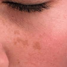 Ouderdomsvlekken zijn bruinige verkleuringen op de huid die kunnen verschijnen vanaf 40-jarige leeftijd. Ze zijn het gevolg van vrije radicalen en gifstoffen die opgebouwd zijn in het lichaam.