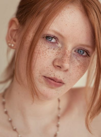freckle face redhead