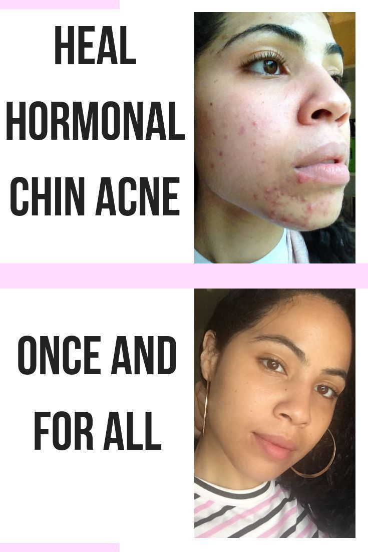 Your Hormones May Be Causing You To Break Out On Your Chin Every Month This Was A Problem For Me Too Here Ar Chin Acne Chin Acne Causes Cystic Acne Treatment