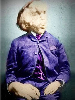 Proteus syndrome - The Elephant Man - John Merrick, as he was.