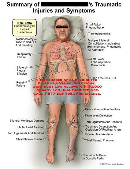 21 best rhabdomyolysis images on pinterest | nursing schools, Skeleton