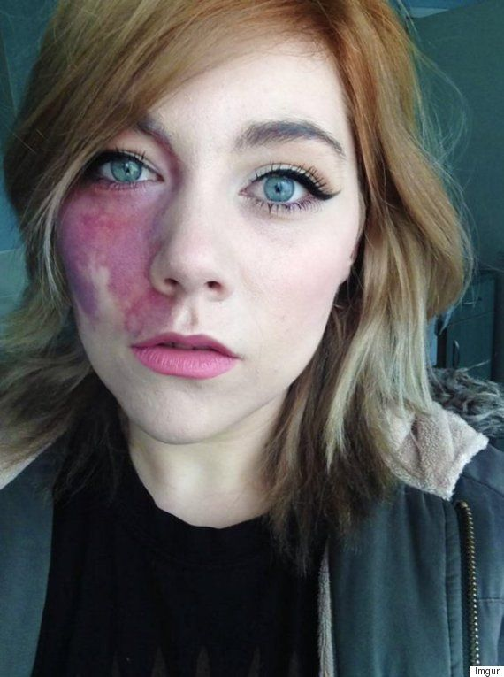Woman Told She Was Too Ugly To Love And Undateable Proudly Shows Facial Birthmark - Shes Tired Of Hiding Under Make-Up