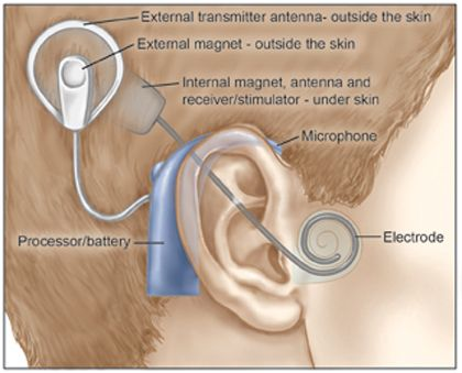 Video Animation about Cochlear Implants