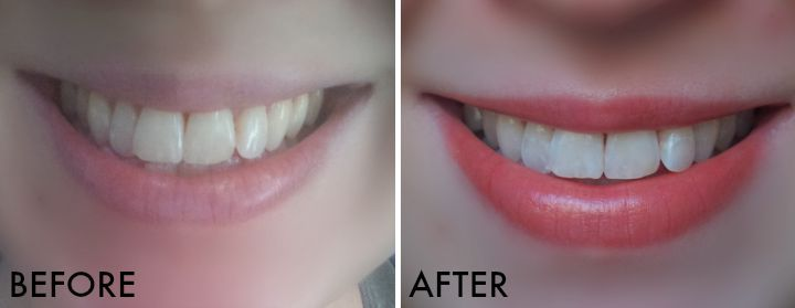Crest 3d White Brilliance Toothpaste System Before And