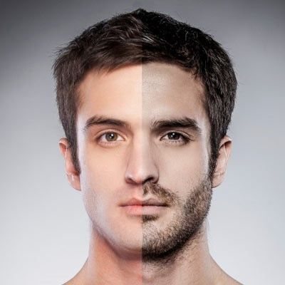 We are providing the beard hair transplant services in Dubai. Beard transplant gives you a massive look.
