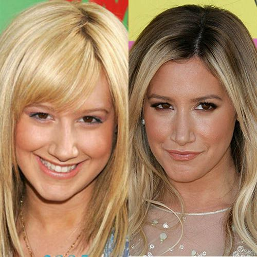 Ashley Tisdale Plastic Surgery Before and After Photos, Pics – Rhinoplasty, Nose Job