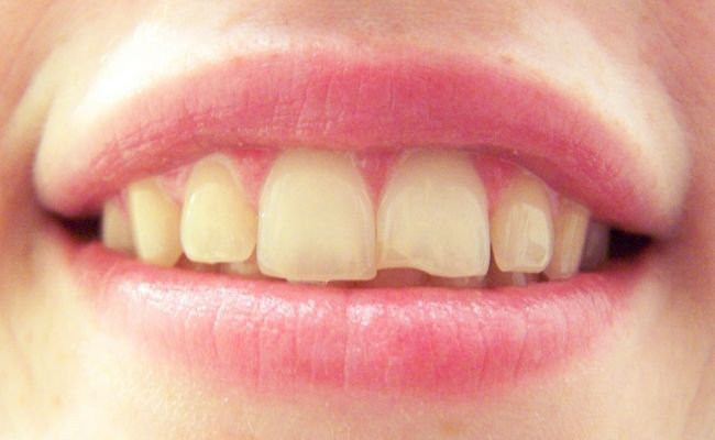 10 Home Remedies For Cracked Tooth