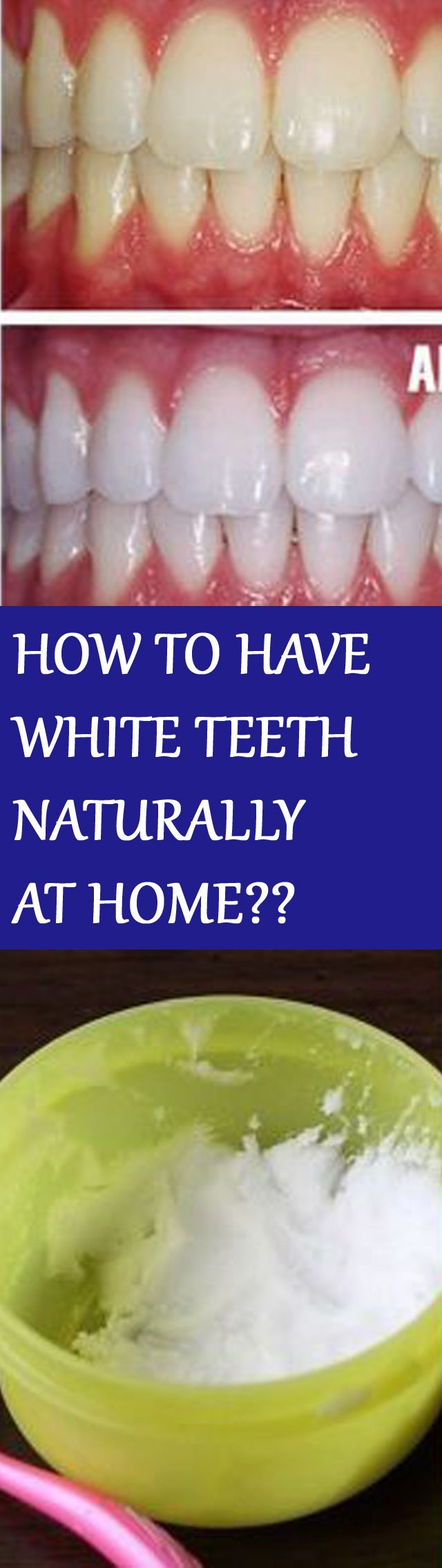 HOW TO HAVE WHITE TEETH NATURALLY AT HOME IN JUST 3 MINUTES ( WORKS 100%)! For instructions click the picture :D