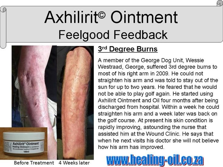Axhilirit HO Oil and Ointment can be used as first line treatment on all burns and other wounds. Efficacy proven in the field by Adventurists in South America, Mongolia and up  Kilimanjaro. www.healing-oil.co.za