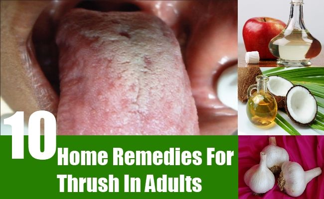 10 Home Remedies For Thrush In Adults | http://www.searchhomeremedy.com/home-remedies-for-thrush-in-adults/