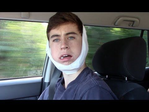 WISDOM TEETH - Nash Grier #babestatus He is still one attractive guy!