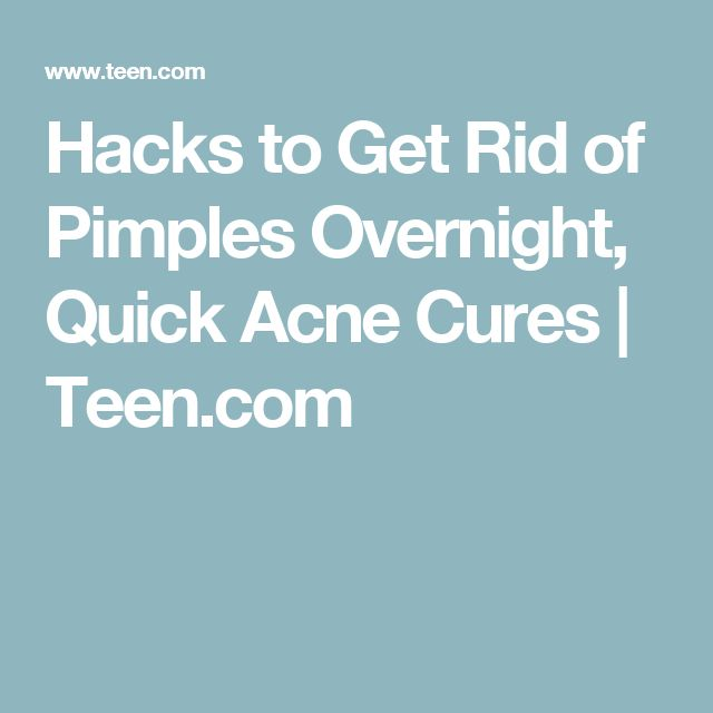 Hacks to Get Rid of Pimples Overnight, Quick Acne Cures | Teen.com