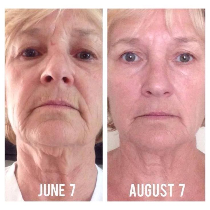 I'd say those 2 months with Rodan + Fields REDEFIN…