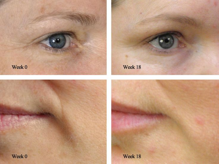 DermaRoller (Collagen Induction Therapy) | The Green Room Bournemouth