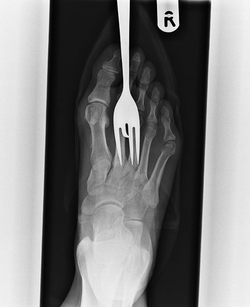 Why does a doctor even NEED this X-ray? I mean is she not sure that there's something in this persons foot? Ha ha ha!!