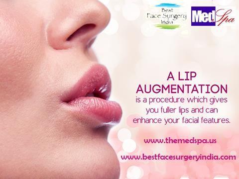 An Article for Lip augmentation surgery – What to expect during the procedure? by Dr. Ajaya Kashyap on HealthKumbh, Plastic Cosmetic Surgeon in New Delhi.  #lipaugmentation, #lipenhancement, #fullerlips, #lipenlargement, #lipfullness, #nonsurgicalprocedure, #fillers, #cosmeticsurgery, #dermalfiller, #plumperlips, #lipinjections, #plumplips, #injectablefillers, #lipimplant