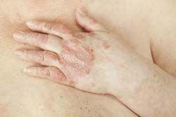 Psoriatic Arthritis: Causes, Signs, Symptoms, Expert Views, Diagnosis and Treatment