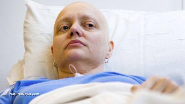 la fraude de l'industrie du Cancer enfin dévoilée au gd jour : de nombreux faux diagnostics-