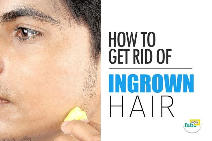 How to Remove an Ingrown Hair Quickly without Laser | Fab How #IngrownHairRemedies