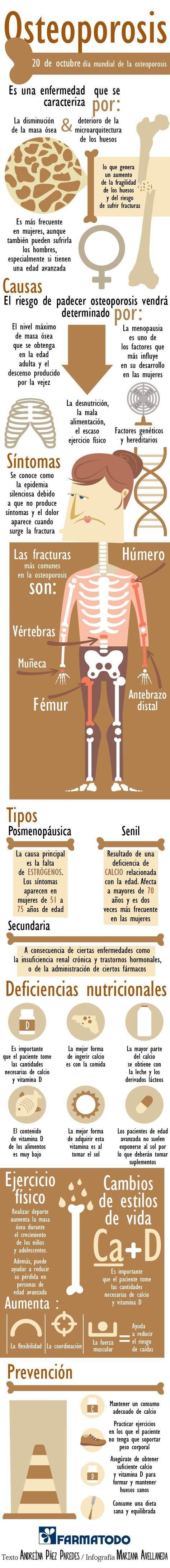 Conocer una enfermedad nos permite saber cómo evitarla o tratarla. Aquí te compartimos detalles sobre la Osteoporosis.