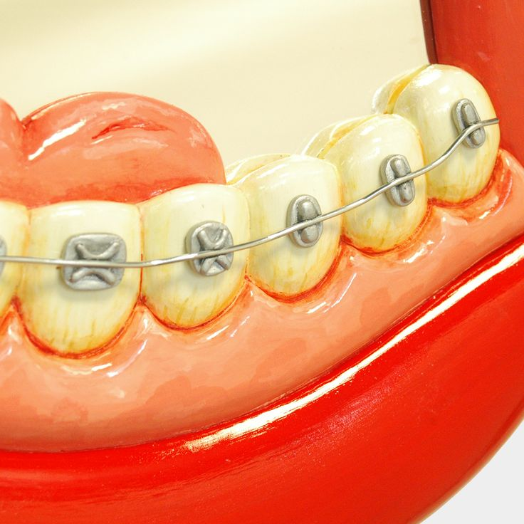 Orthodontics Mirror for those who love Braces :)