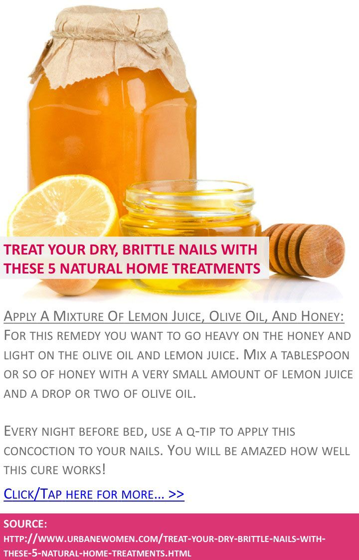 Treat your dry, brittle nails with these 5 natural home treatments - Apply a mixture of lemon juice, olive oil, and honey - Click for more: http://www.urbanewomen.com/treat-your-dry-brittle-nails-with-these-5-natural-home-treatments.html